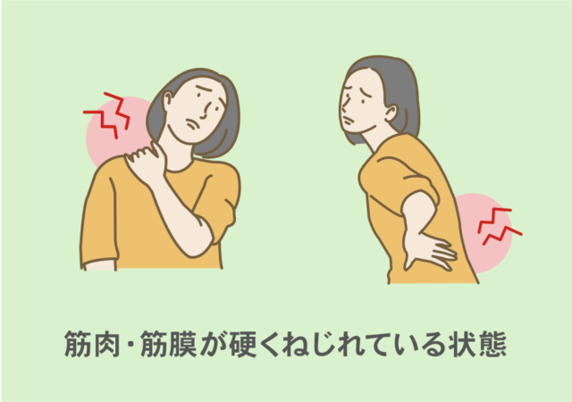 筋肉・筋膜が硬くねじれている状態